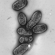 Heutiger Pest-Erreger verursachte im Mittelalter Schwarzen Tod