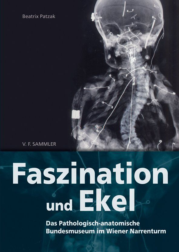 Die Geschichte des Narrenturms Teil 2: Das Pathologisch-anatomische ...