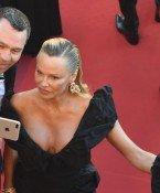 Pamela Anderson: Was ist nur mit deinem Gesicht passiert?