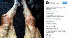Tour de France: Rad-Profi postet dieses Schock-Foto
