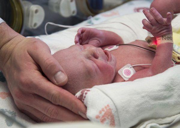 Erste derartige Geburt in den Vereinigten Staaten.